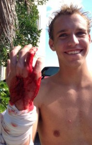 Cole Taschman, 16, shows his injuries after being bitten by a shark Sunday at Bathtub Beach in Jensen Beach.